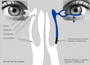Illustration of Normal Vs. Blocked tear duct